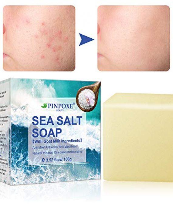 Akne seife, Handgemachtes Seife, Natural Seife, Gesicht Seife, Sea Salt Seife, Reinige Gesicht und Körper für alle Hauttypen, Für Akne, Ekzem, Gesichtsreinigung Behandlung für Akne Prone Haut