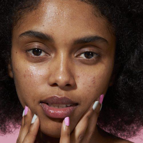 Wie Rötungen bei verschiedenen Hauttönen aussehen