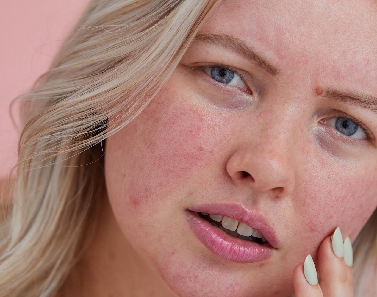 Ein Dermatologe bricht 4 TikTok Hautpflege-Trends herunter